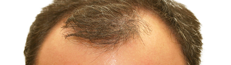 Regaine for Male Hair Loss